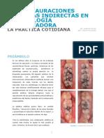 Las Restauraciones Estéticas Indirectas en Odontología Conservadora Dr. Alberto Pujia Odt. Paolo Riccioni Es