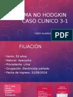 Caso Clinico- Linfoma No Hodking