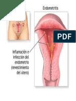Endometritis Puerperal.docx