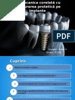 Biomecanica Corelată Cu Restaurarea Protetică Pe Implante