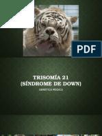 Sx de Down