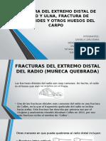 Fracturas Muñeca Mano