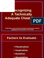 Recognizing a Technically Adequate Chest X-Ray
