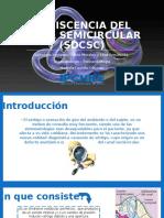 Dehiscencia Del Canal Semicircular