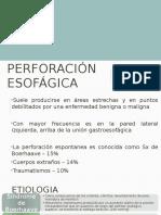 perforacion esofagica