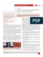 Dental Transposition of Mandibular Canine and Lateral Incisor