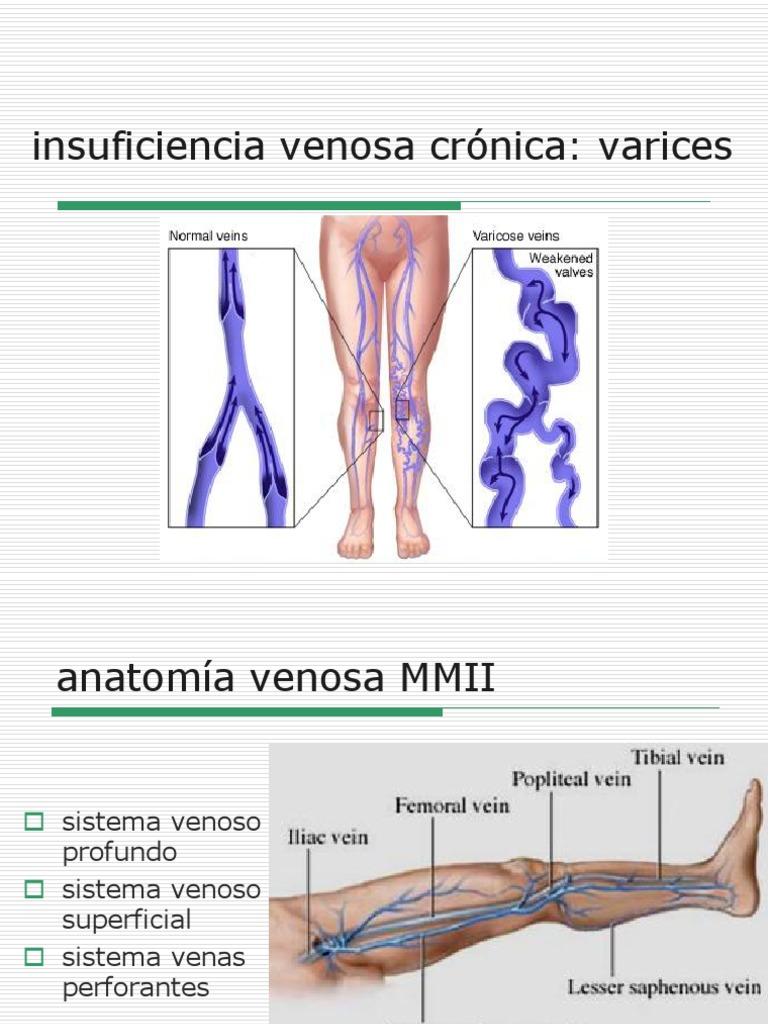 Dorable La Pierna Anatomía Venosa Profunda Foto - Anatomía de Las ...
