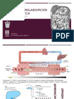 Síndrome de Malabsorción y Úlcera Péptica