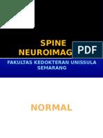 Spine neuroimaging.pptx