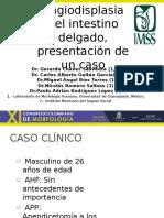 Angiodisplasia de Intestino Delgado