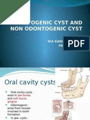 Odontogenic Cyst and Non Odontogenic Cyst | Epithelium | Anatomy