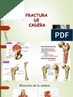 Fx Cadera Mattya