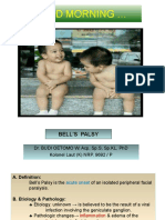 Bell_s Palsy- Gbs