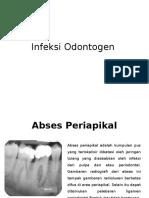 Infeksi Odontogen,,
