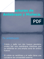 7.Fx Antebrazo y Muñeca. clase