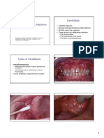 Fungal and Parasitic Infections