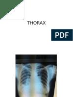 Photo Album Thorax
