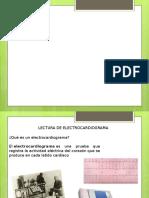 ELECTROCARDIOGRAMA.pptx