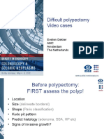 Difficult Polipectomy
