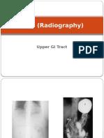 X-ray GI