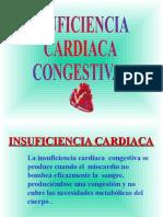 5.- Insuficiencia Cardiaca Congestiva