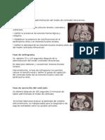 Ejemplo de Las Fases TAC renal
