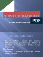 Quiste hidatidico (1)