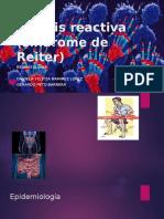 Artritis Reactiva Síndrome de Reiter