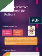Artritis Reactiva (Síndrome de Reiter)