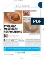 Tympanic Membrane Perforations Update Dr Nirmal Patel Article1 (2)