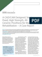A CADCAM Designed, Semi