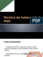 Técnica de Tuberosidad Baja