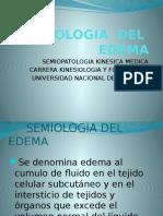 Semiologia Del Edema