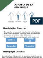 Clínica Topográfica del paciente hemiplejico