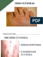 Micosis Cutanea y Subcutanea Dermatofitosis