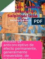 Oclusión Tubaria Bilateral o Salpingoclasia (OTB)