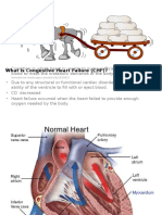 What is Congestive Heart Failure (CHF)