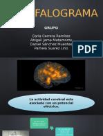 Encefalograma