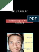 Ppt Bells Palsy