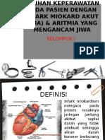 Askep Aritmia Dan Ima