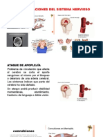 Alteraciones Del Sistema Nervioso