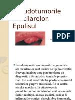 Epulisul.2