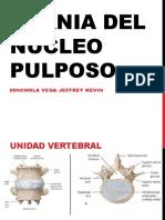 Hernia Del Núcleo Pulposo