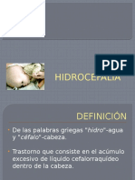 hidrocefalia-091014212431-phpapp01