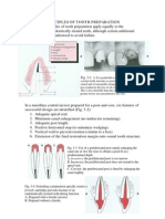Fixed Prosthodontics II - 3rd Lecture - SIUST, College of Dentistry