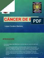 cancer de piel marlene.ppt