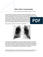 Postprimary Tuberculosis Lung Imaging