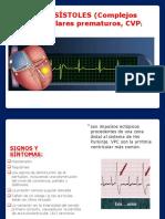 Extrasistoles y Fibrilacion Ventricular
