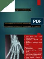 Laporan Kasus Osteomielitis