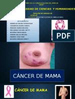Cancer de Mama Ultimo.pptxm,Bjb